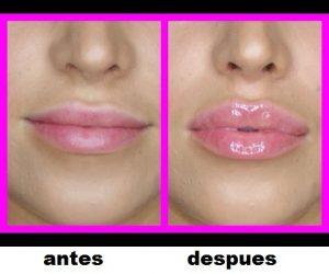 City Lips Pro opiniones, foro, comentarios