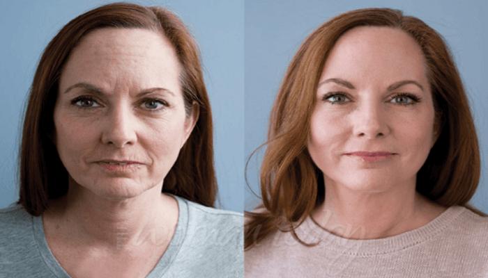 Dermavix funciona, ingredientes - anti anging formula